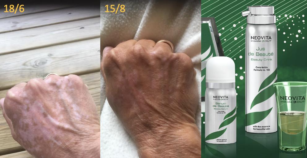 Neovitas Inside & Out har positiv virkning på hudsygdommen Vitiligo