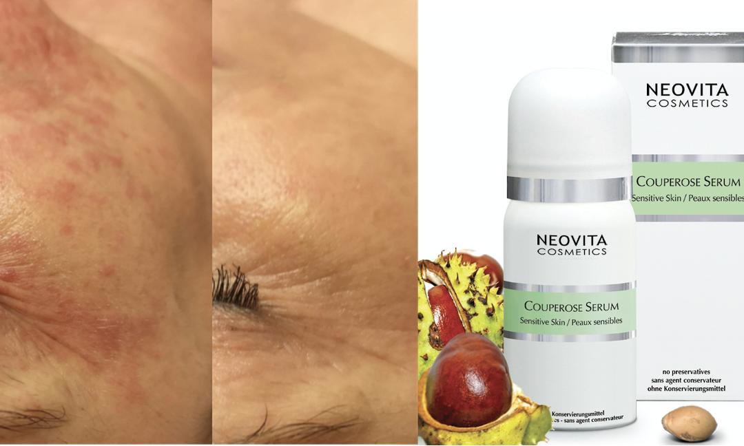 Neovita-produkter viser synlige resultater mod perioral dermatitis